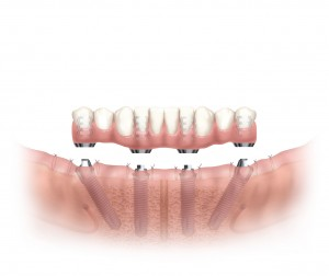 dental implants clermont