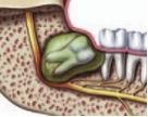Orlando wisdom teeth extractions