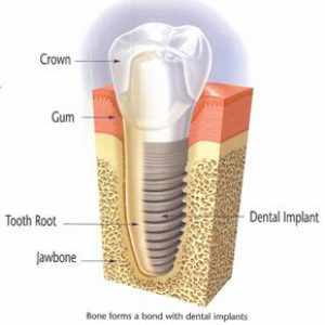 Lake Nona Dental Implant