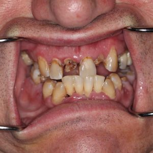 Teeth Removal in Orlando
