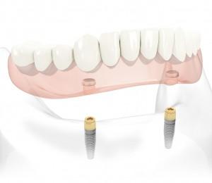 dental implant denture orlando