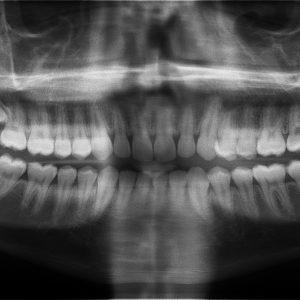 Lake Nona wisdom teeth extractions