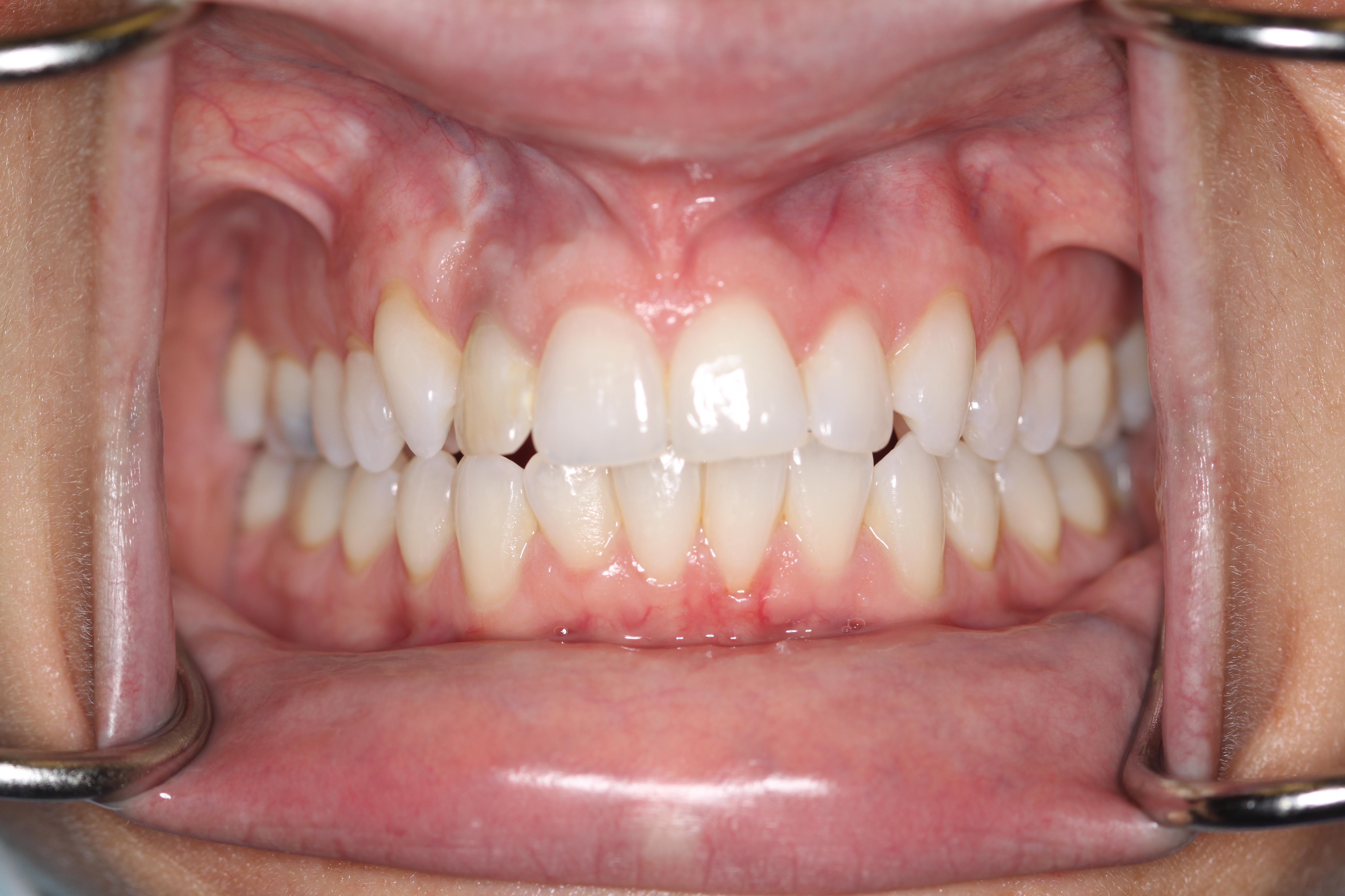 Wisdom Teeth Can Cause Shifting Of Your Teeth