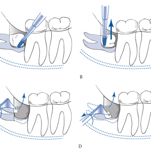 clermont and lake nona wisdom teeth extractions