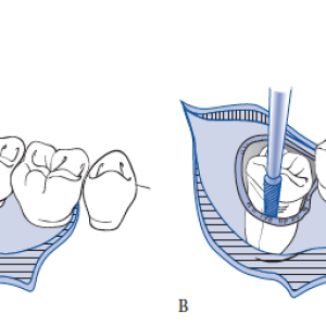Clermont and lake nona wisdom teeth removal