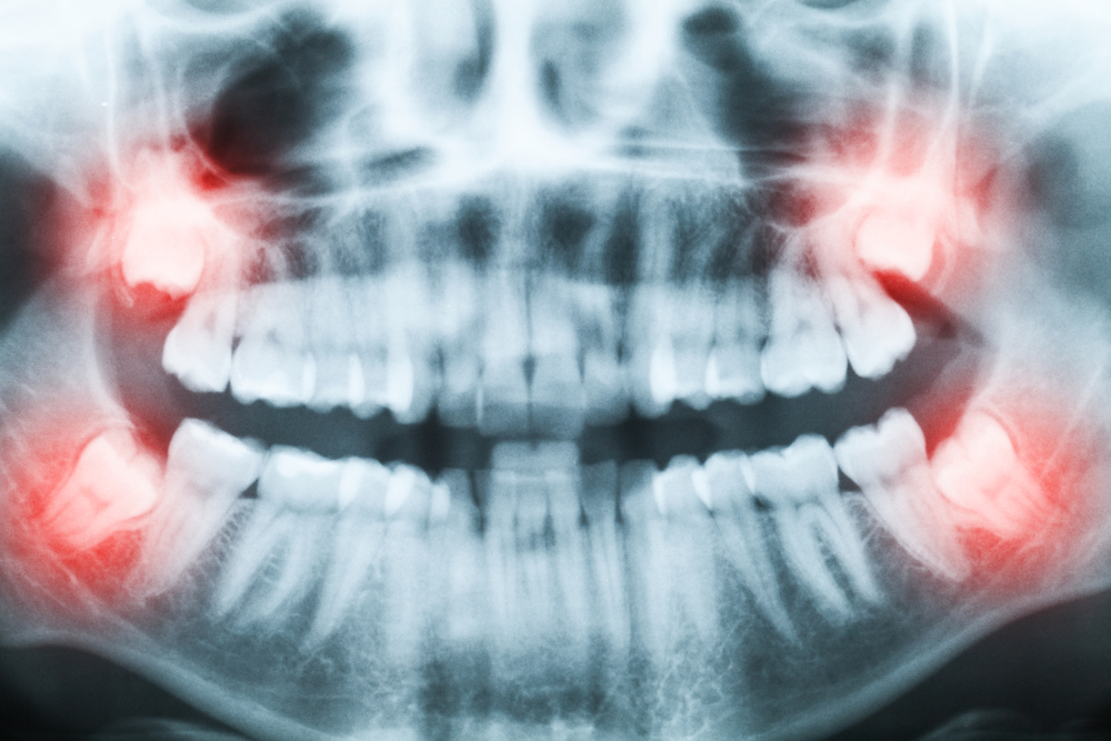 wisdom teeth extractions orlando