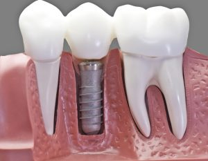 dental implant orlando
